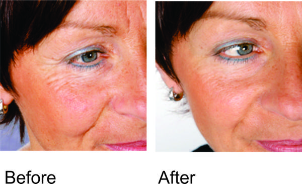 ... Results Of Red Light Therapy Bulb Treatment Photo Gallery